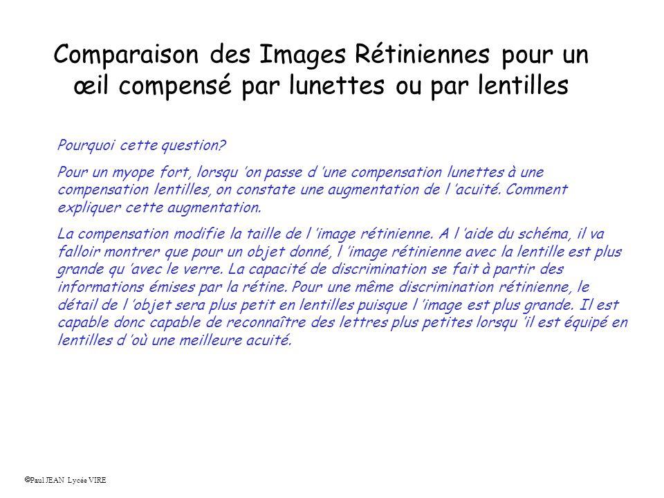 Comparaison des Images Rétiniennes pour un œil compensé par lunettes ou par lentilles Pourquoi cette question? Pour un myope fort, lorsqu on passe d u
