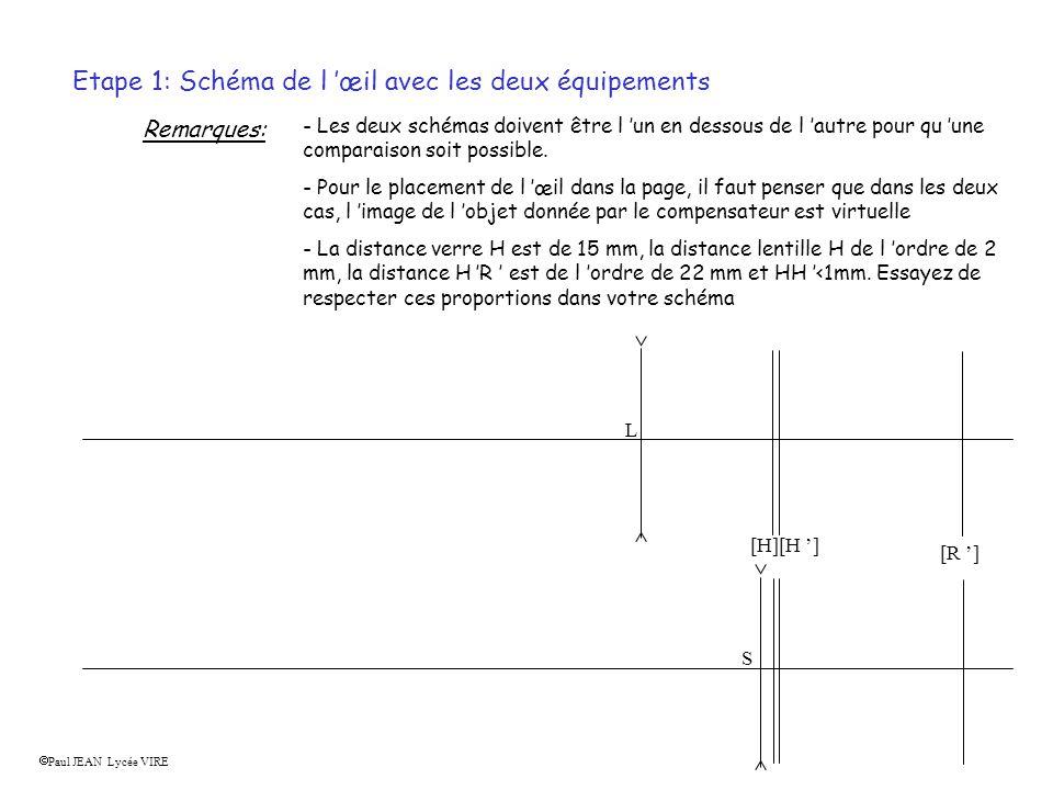 Etape 1: Schéma de l œil avec les deux équipements Remarques: - Les deux schémas doivent être l un en dessous de l autre pour qu une comparaison soit