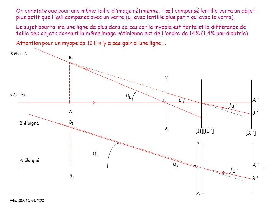 [R ] [H][H ] L S Etape 2 : Tracé de l image rétinienne d un objet éloigné pour l oeil compensé par le verre Paul JEAN Lycée VIRE Tracer l image A 1 B