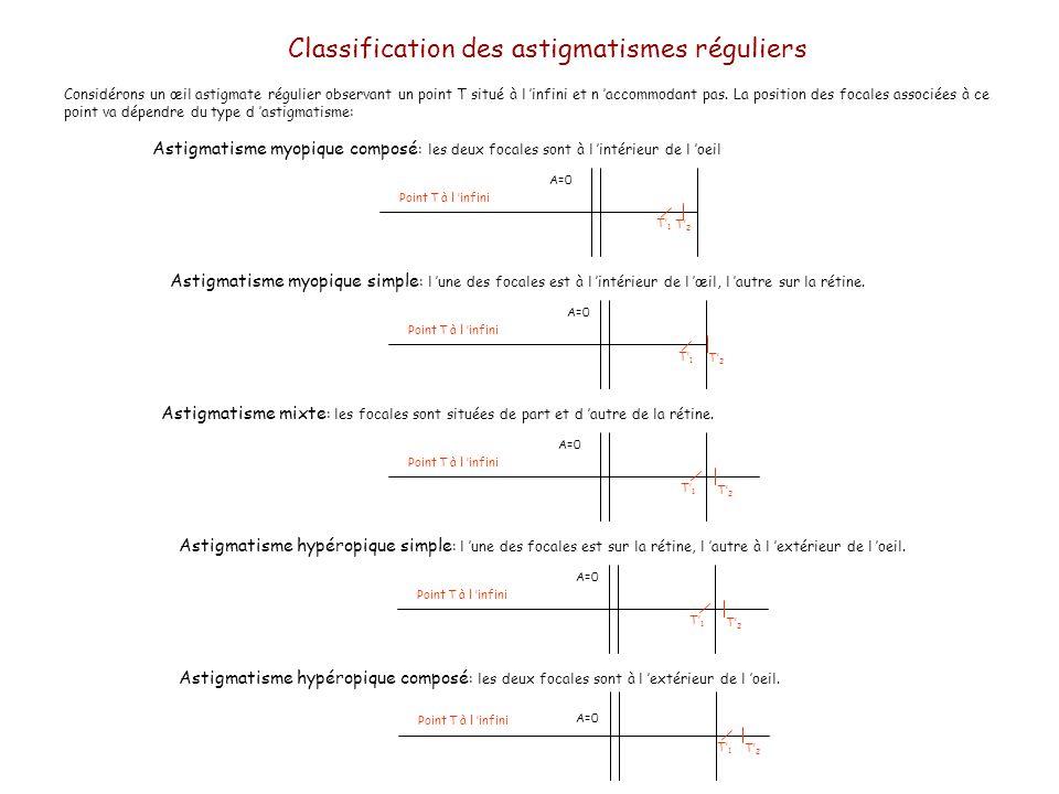Considérons un œil astigmate régulier observant un point T situé à l infini et n accommodant pas. La position des focales associées à ce point va dépe