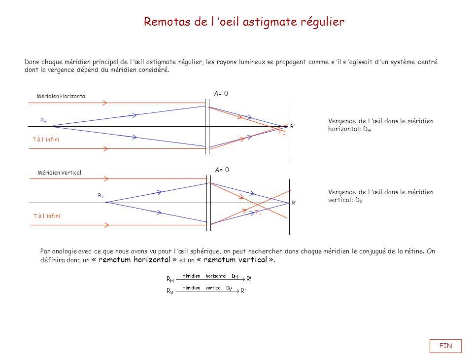 FIN Remotas de l oeil astigmate régulier Dans chaque méridien principal de l œil astigmate régulier, les rayons lumineux se propagent comme s il s agi