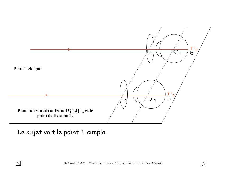 D =( n-1) A D: déviation angulaire A: angle au sommet du prisme Définition de la dioptrie prismatique: d l Un prisme de puissance 1 provoque une déviation de d = 1 cm à une distance de 1 m.