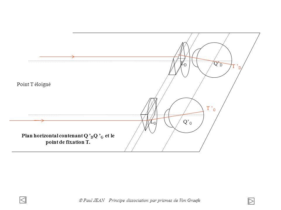 Que devrait faire le couple oculaire pour que le point T reste vu simple: Œil cyclope du couple oculaire avec les prismes dans le plan vertical lorsque celui ci voit T simple: f D f G T D T G Pour que le point T soit vu simple, il faudrait que les images rétiniennes T D et T G se forment sur des points correspondants.