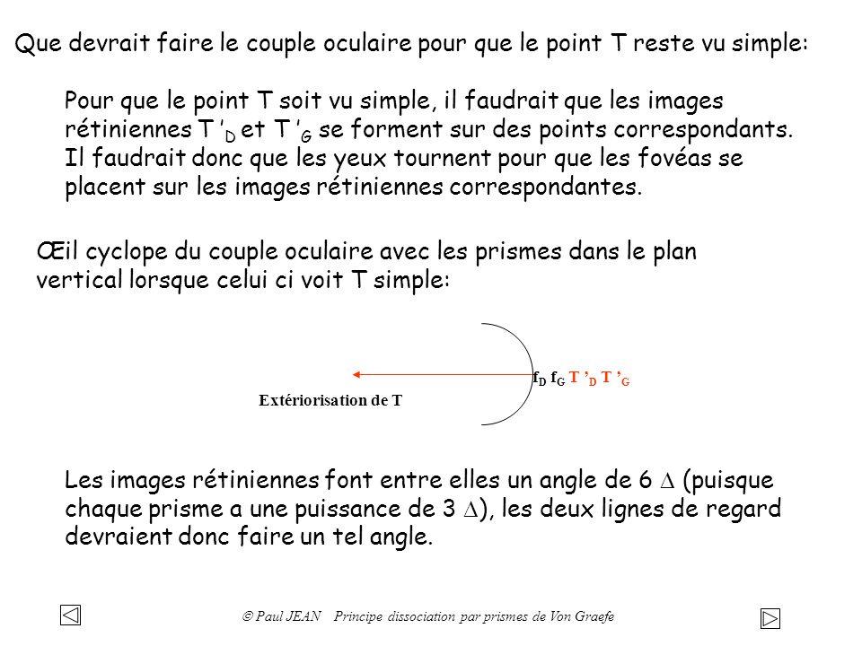 Que devrait faire le couple oculaire pour que le point T reste vu simple: Œil cyclope du couple oculaire avec les prismes dans le plan vertical lorsqu