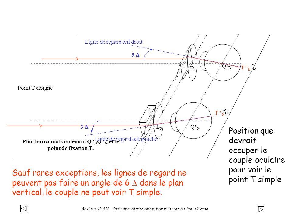 QDQD QGQG LDLD LGLG Point T éloigné Plan horizontal contenant Q D Q G et le point de fixation T. T G fGfG T D fDfD Position que devrait occuper le cou