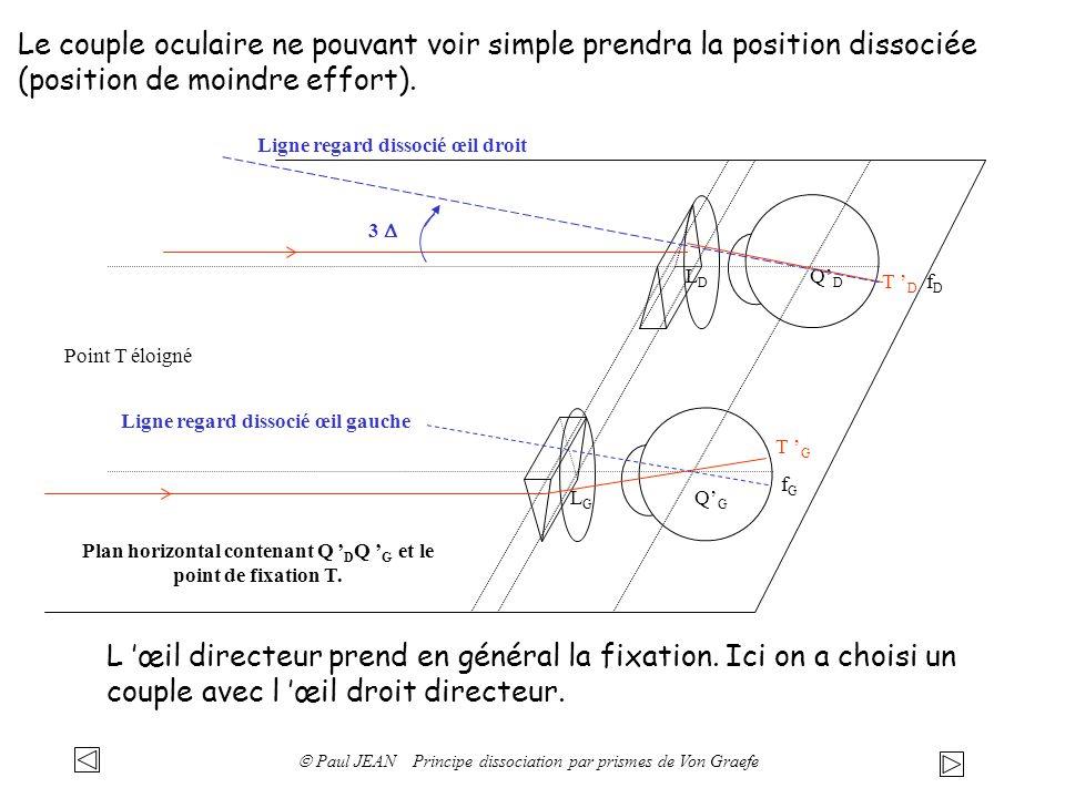 Le couple oculaire ne pouvant voir simple prendra la position dissociée (position de moindre effort). QDQD QGQG LDLD LGLG Point T éloigné Plan horizon