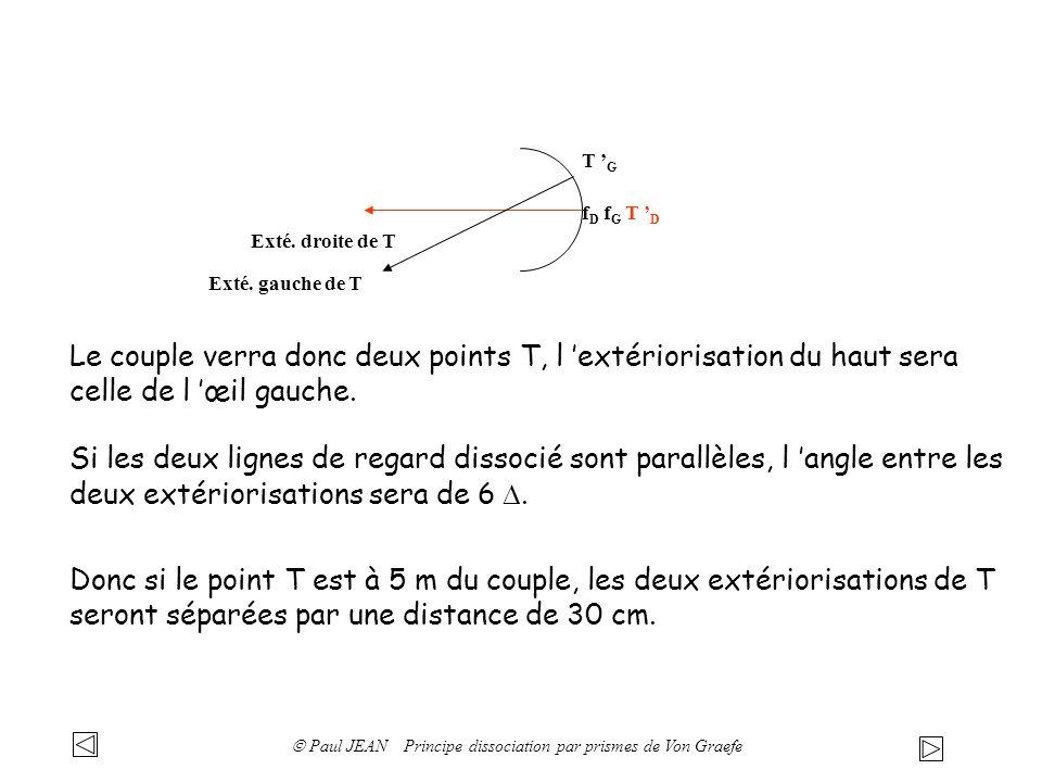 f D f G T D Exté. droite de T T G Exté. gauche de T Le couple verra donc deux points T, l extériorisation du haut sera celle de l œil gauche. Si les d
