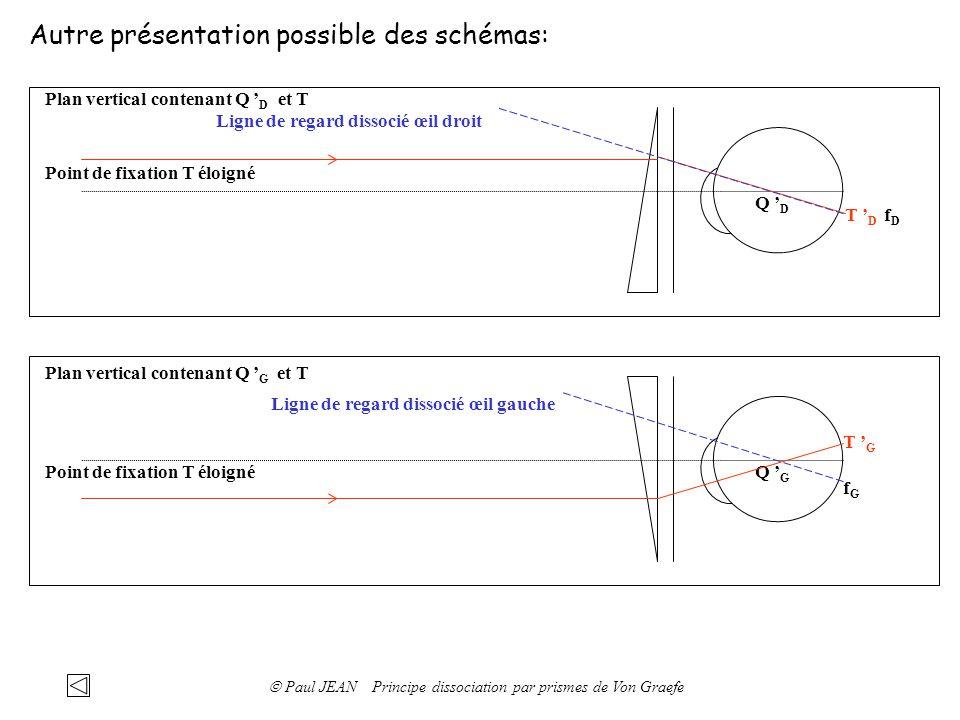 Autre présentation possible des schémas: Q G Plan vertical contenant Q G et T T G Point de fixation T éloigné Q D Plan vertical contenant Q D et T T D