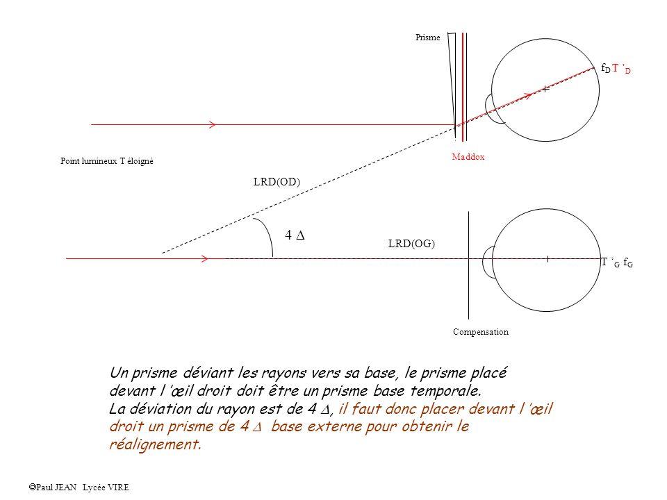 Compensation Maddox Point lumineux T éloigné Prisme Paul JEAN Lycée VIRE 1 - Tracer l image rétinienne gauche du point lumineux puisque le trajet des rayons est connu.