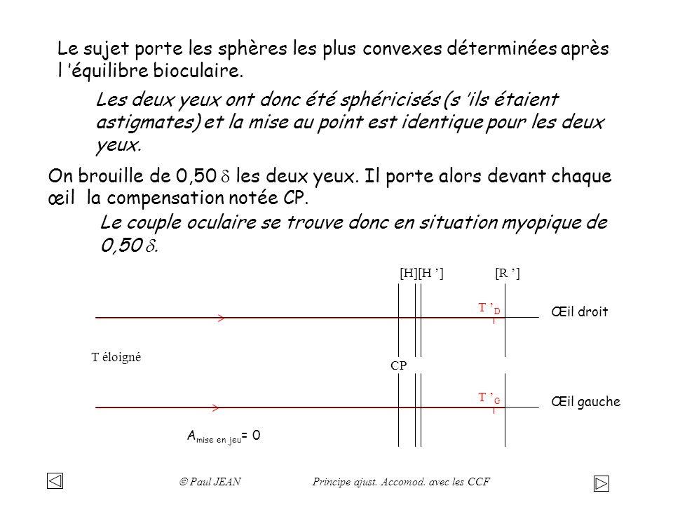 CP T éloigné T D Œil droit A mise en jeu = 0 On place devant l œil droit les cylindres croisés fixes (CCF): + 0,50 ( - 1,00 ) 90° T D0 T D90 CP0 T éloigné CP90 T éloigné A mise en jeu = 0 Méridien à 0° Méridien à 90° -0,50 +0,50 En plaçant les CCF devant l œil, on a donc créé un astigmatisme direct.