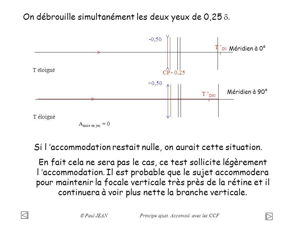 On débrouille simultanément les deux yeux de 0,25. T D0 T D90 CP - 0,25 T éloigné A mise en jeu = 0 Méridien à 0° Méridien à 90° -0,50 +0,50 Si l acco