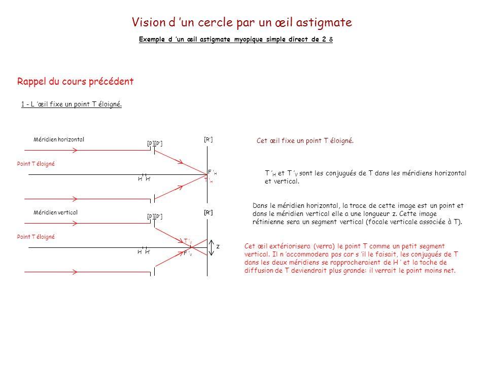Vision d un cercle par un œil astigmate Exemple d un œil astigmate myopique simple direct de 2 L œil fixe le centre O d un cercle éloigné.