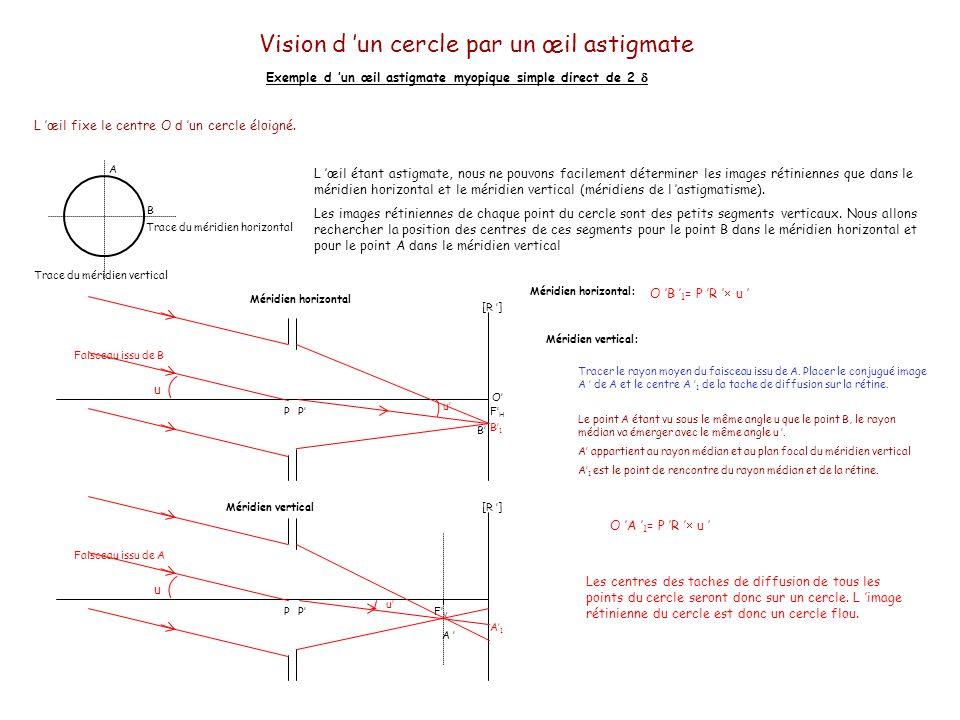 Vision d un cercle par un œil astigmate Exemple d un œil astigmate myopique simple direct de 2 Extériorisation du cercle L extériorisation est similaire à l image rétinienne.