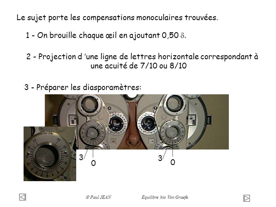 Le sujet porte les compensations monoculaires trouvées. 2 - Projection d une ligne de lettres horizontale correspondant à une acuité de 7/10 ou 8/10 3