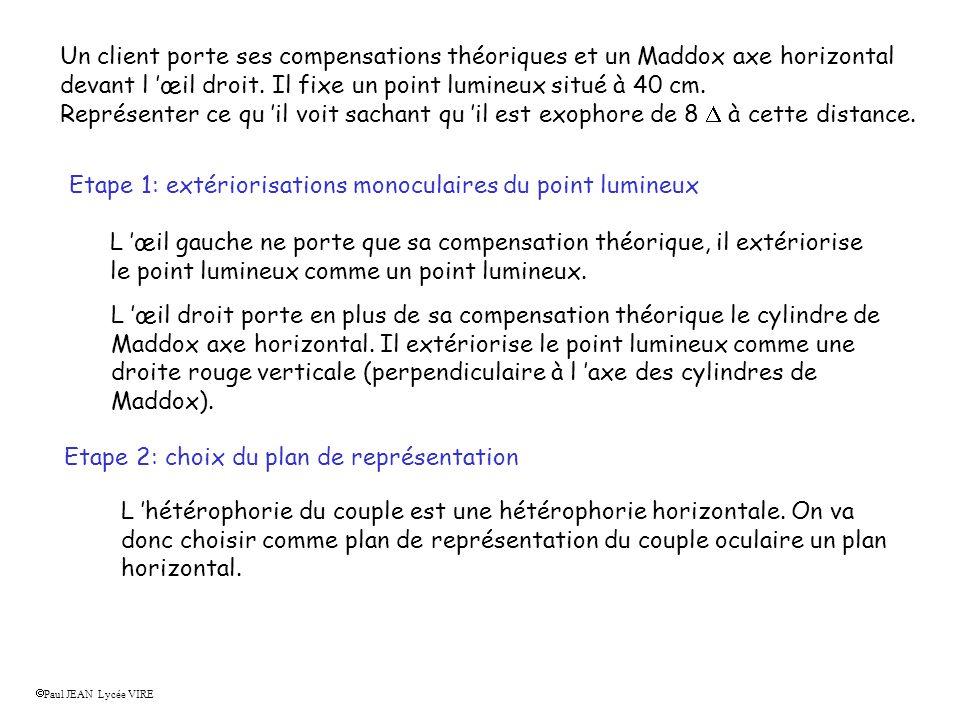 Etape 3: Schéma du couple oculaire dans le plan horizontal 1 - Placer les compensations s il y en a.