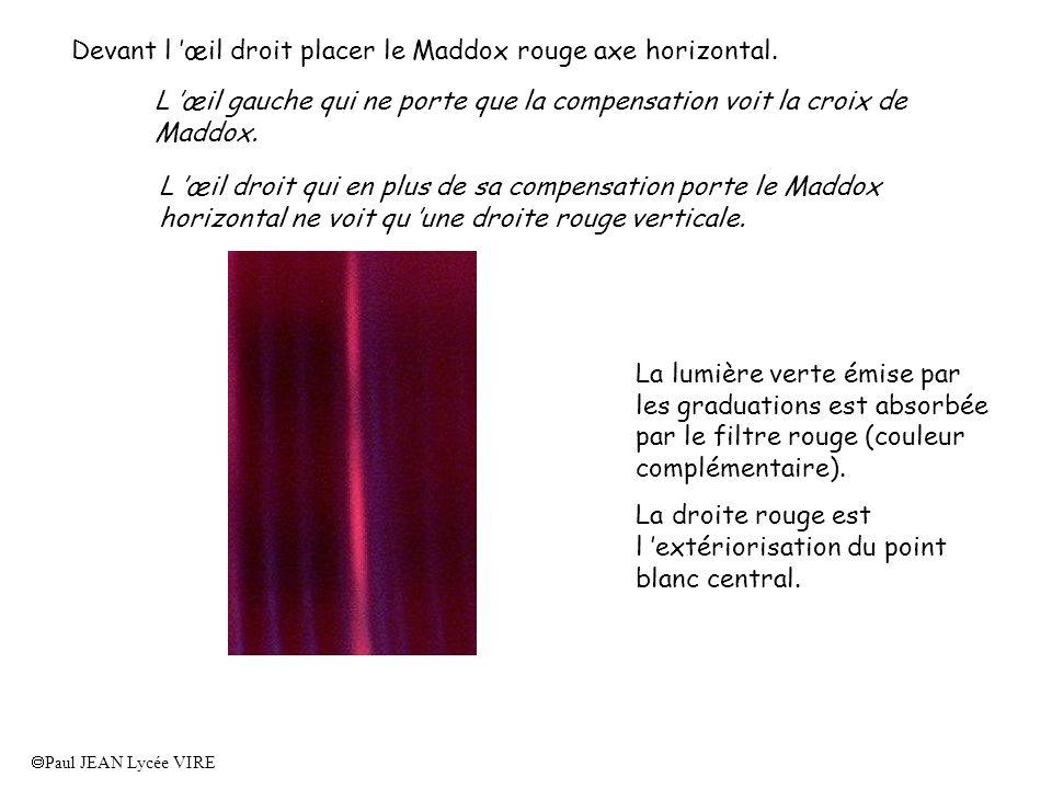 Paul JEAN Lycée VIRE Devant l œil droit placer le Maddox rouge axe horizontal. L œil gauche qui ne porte que la compensation voit la croix de Maddox.