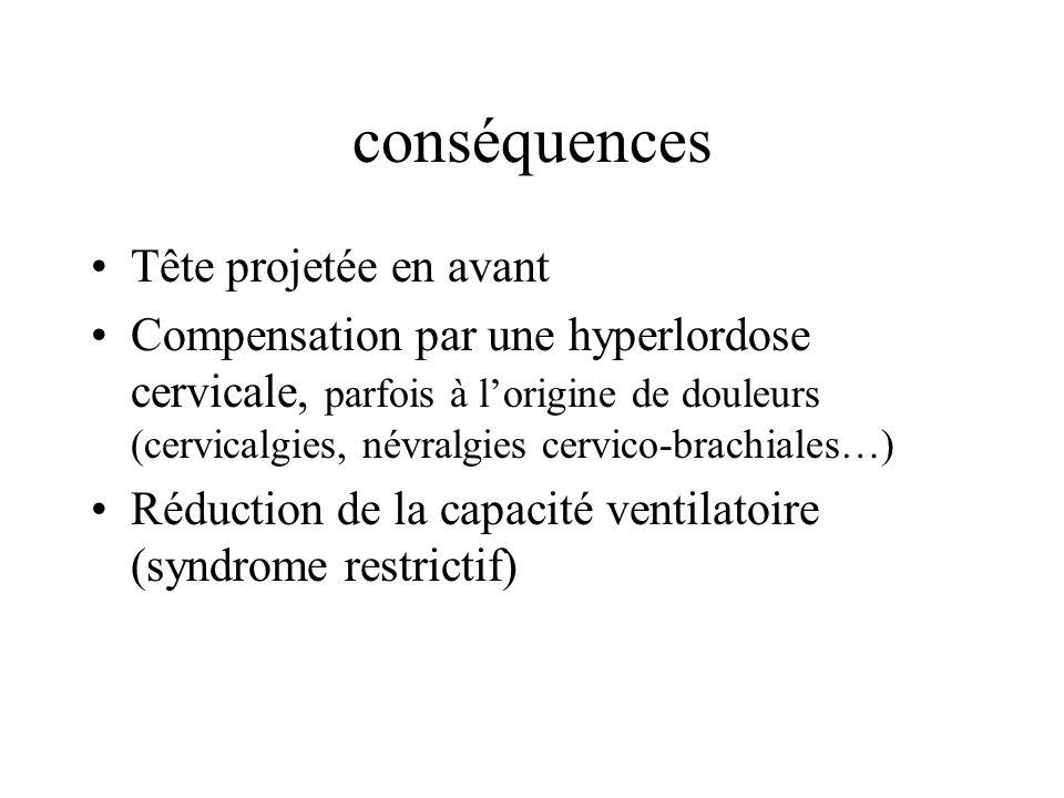 conséquences Tête projetée en avant Compensation par une hyperlordose cervicale, parfois à lorigine de douleurs (cervicalgies, névralgies cervico-brac
