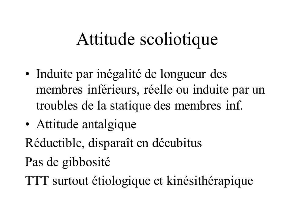 Attitude scoliotique Induite par inégalité de longueur des membres inférieurs, réelle ou induite par un troubles de la statique des membres inf. Attit