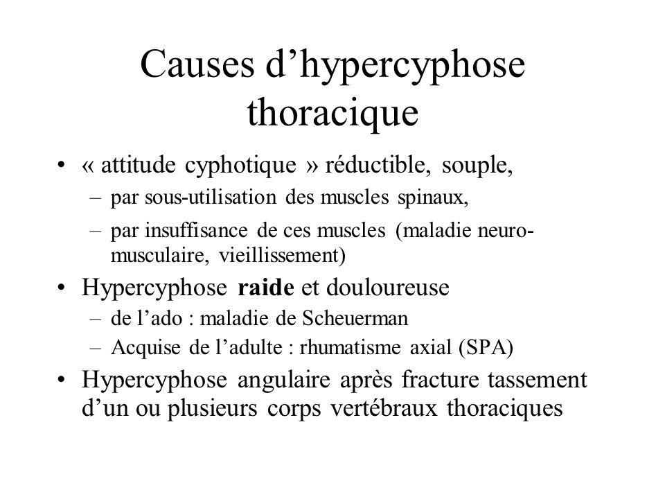 Causes dhypercyphose thoracique « attitude cyphotique » réductible, souple, –par sous-utilisation des muscles spinaux, –par insuffisance de ces muscle