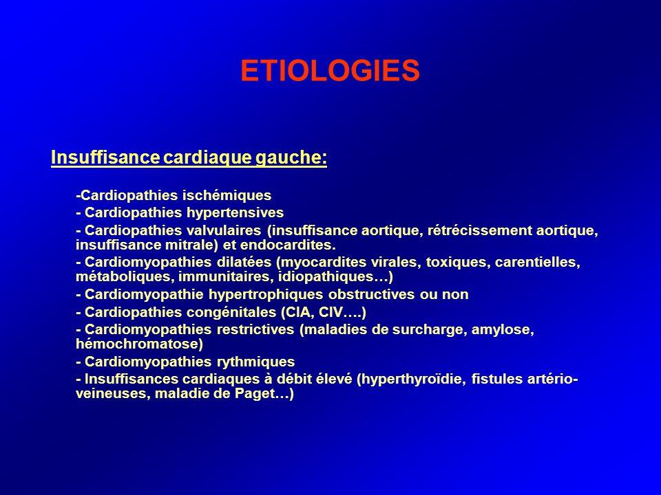 ETIOLOGIES Insuffisance cardiaque gauche: -Cardiopathies ischémiques - Cardiopathies hypertensives - Cardiopathies valvulaires (insuffisance aortique,