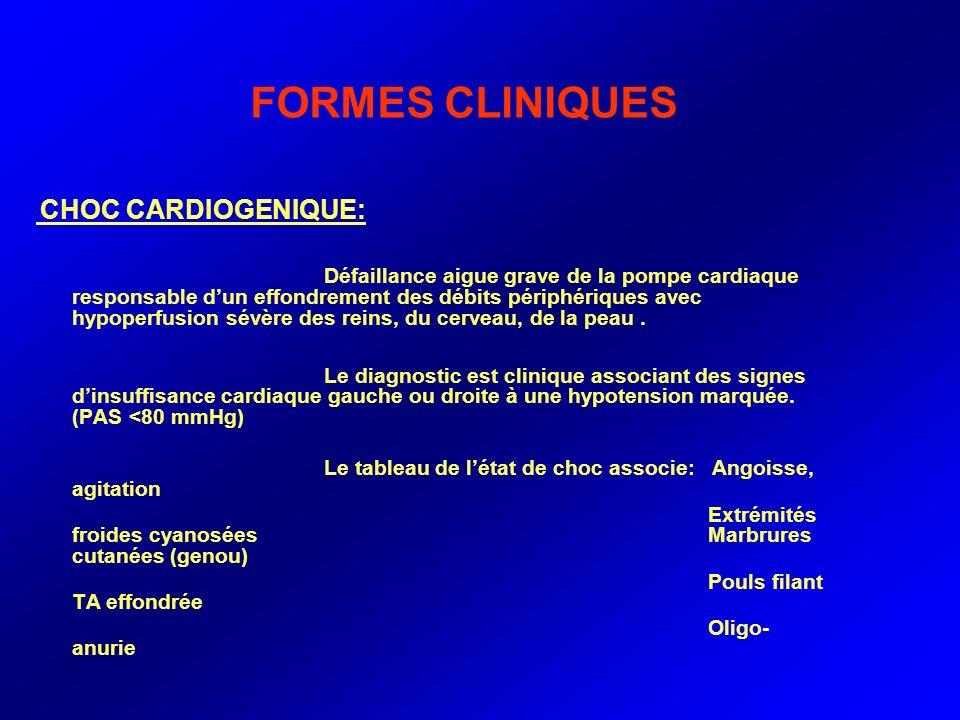 FORMES CLINIQUES CHOC CARDIOGENIQUE: Défaillance aigue grave de la pompe cardiaque responsable dun effondrement des débits périphériques avec hypoperf