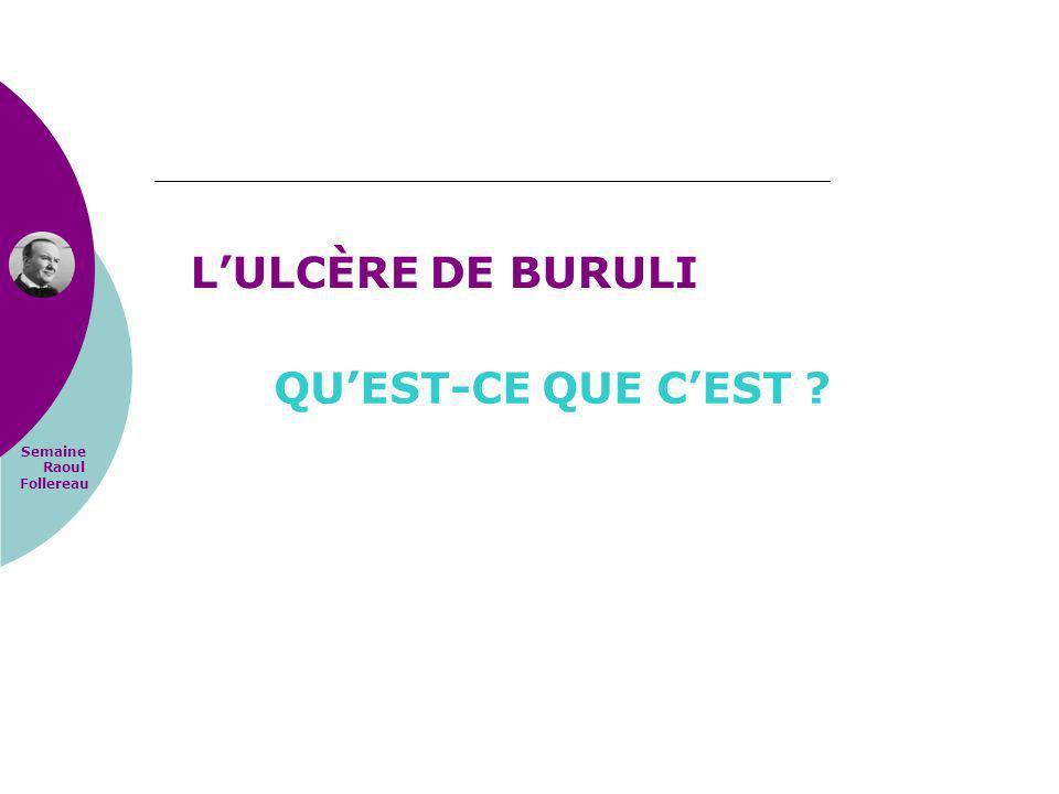 Semaine Raoul Follereau QUEST-CE QUE CEST ? LULCÈRE DE BURULI