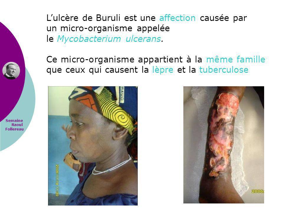 Semaine Raoul Follereau Lulcère de Buruli est une affection causée par un micro-organisme appelée le Mycobacterium ulcerans. Ce micro-organisme appart