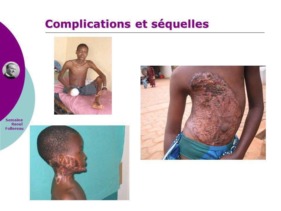 Semaine Raoul Follereau Complications et séquelles