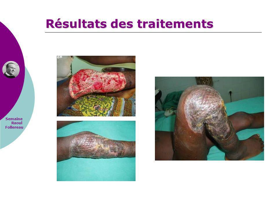 Semaine Raoul Follereau Résultats des traitements