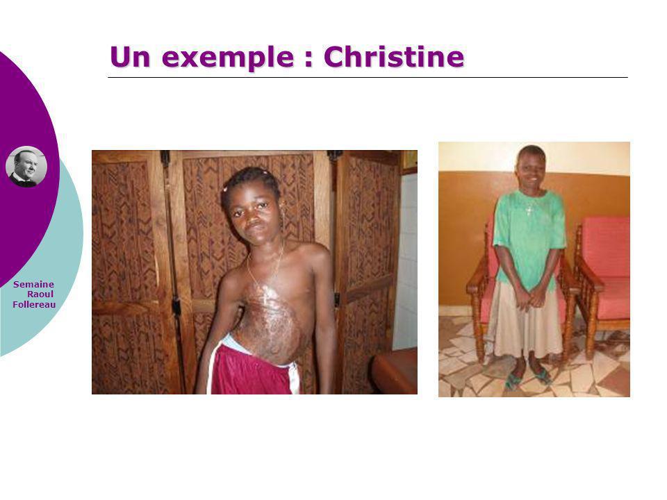 Semaine Raoul Follereau Un exemple : Christine