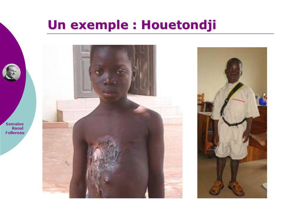 Semaine Raoul Follereau Un exemple : Houetondji