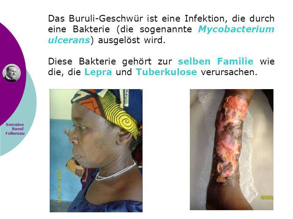 Semaine Raoul Follereau Das Buruli-Geschwür ist eine Infektion, die durch eine Bakterie (die sogenannte Mycobacterium ulcerans) ausgelöst wird. Diese