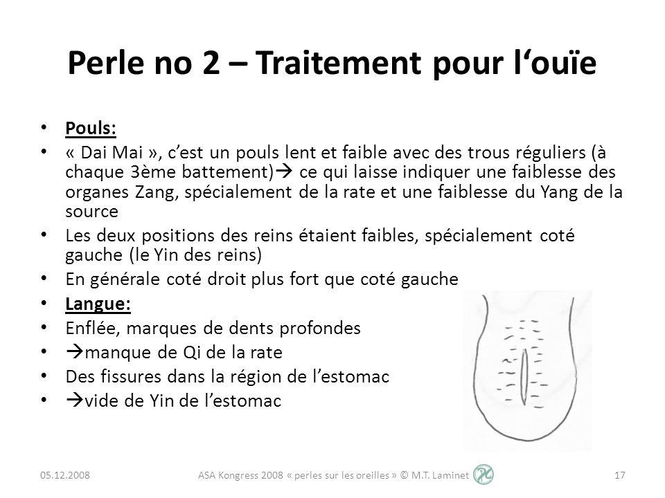 Perle no 2 – Traitement pour louïe Pouls: « Dai Mai », cest un pouls lent et faible avec des trous réguliers (à chaque 3ème battement) ce qui laisse i