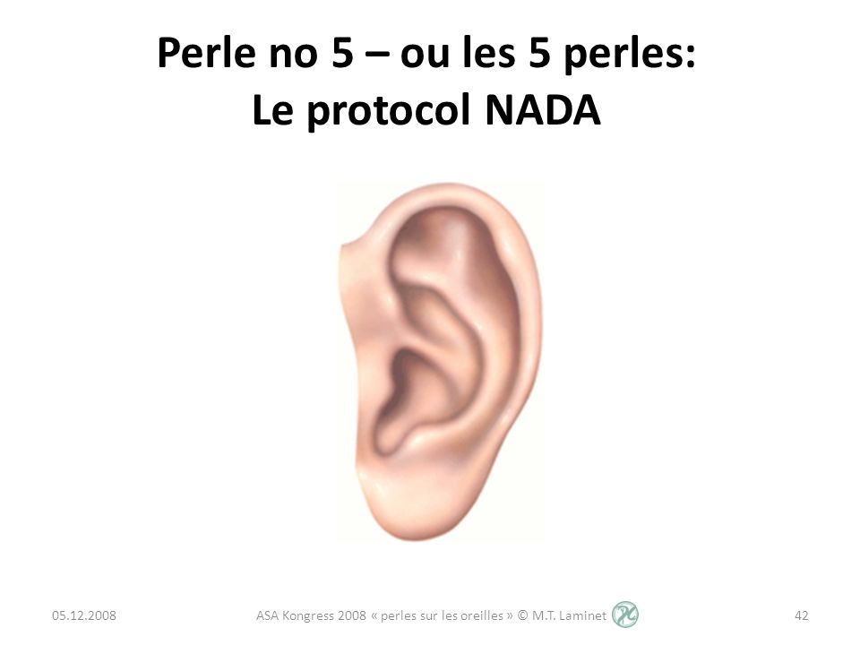 Perle no 5 – ou les 5 perles: Le protocol NADA 05.12.200842 ASA Kongress 2008 « perles sur les oreilles » © M.T. Laminet