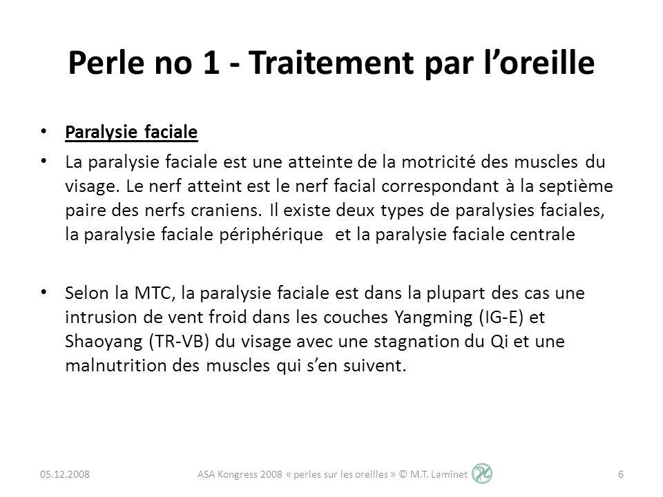 Perle no 1 - Traitement par loreille Paralysie faciale La paralysie faciale est une atteinte de la motricité des muscles du visage. Le nerf atteint es