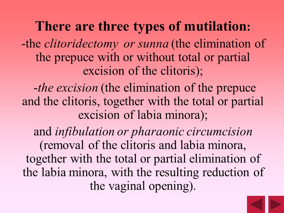 There are three types of mutilation : -the clitoridectomy or sunna (the elimination of the prepuce with or without total or partial excision of the cl