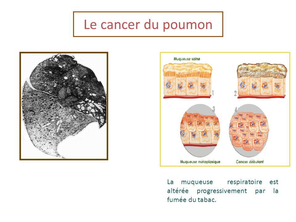 La muqueuse respiratoire est altérée progressivement par la fumée du tabac. Le cancer du poumon