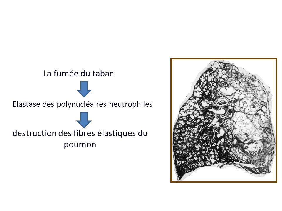 Elastase des polynucléaires neutrophiles La fumée du tabac destruction des fibres élastiques du poumon