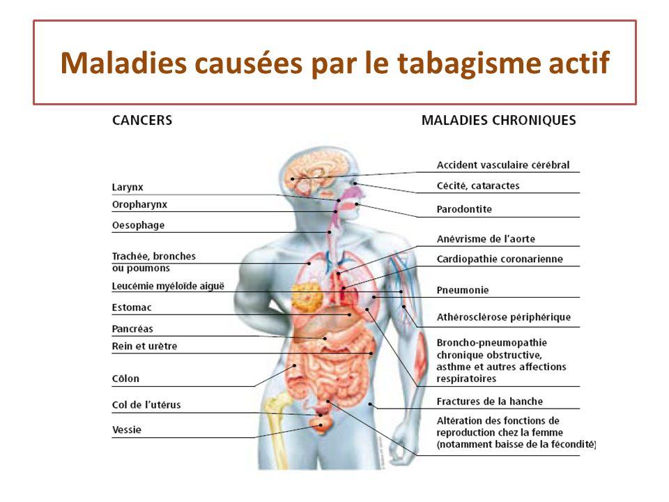 Maladies causées par le tabagisme actif