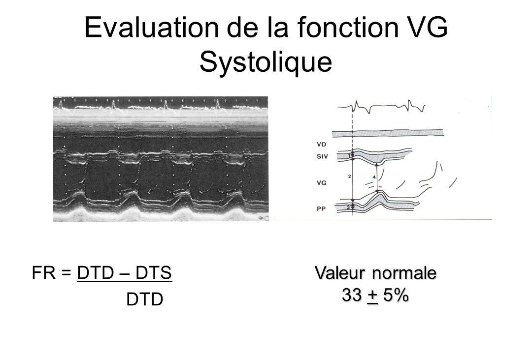 Evaluation de la fonction VG Systolique FR = DTD – DTS DTD Valeur normale 33 + 5%