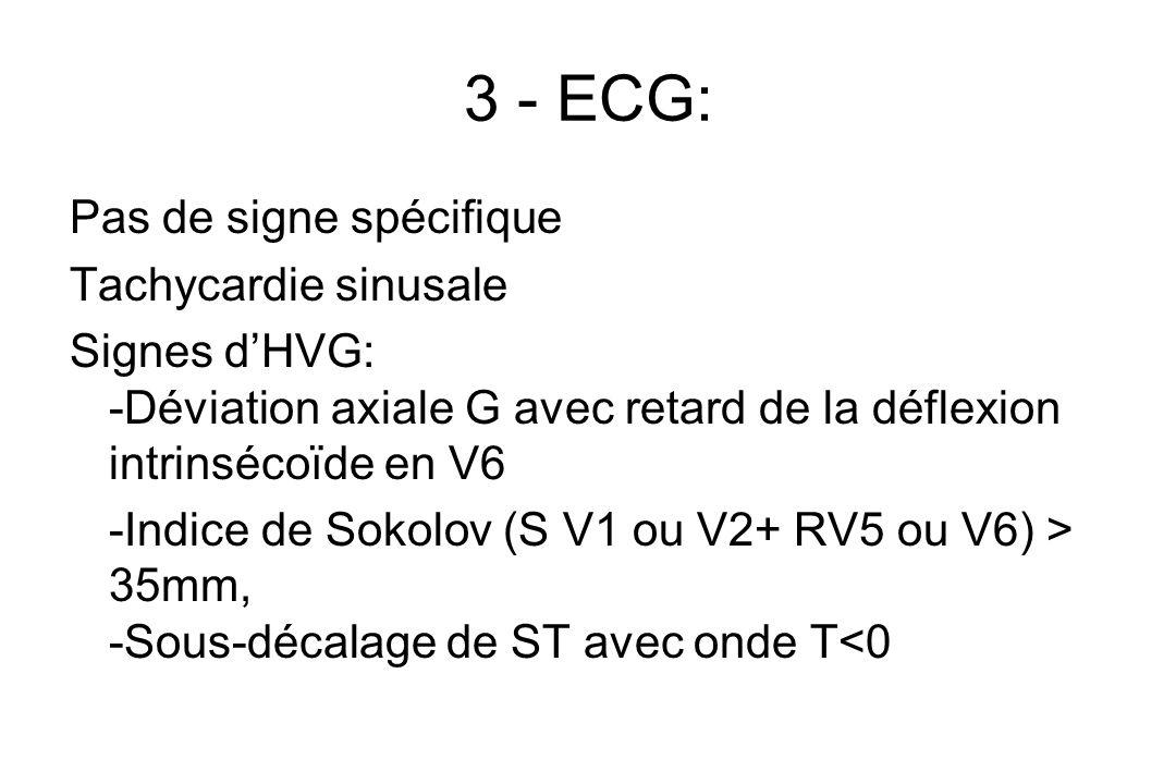 3 - ECG: Pas de signe spécifique Tachycardie sinusale Signes d'HVG: -Déviation axiale G avec retard de la déflexion intrinsécoïde en V6 -Indice de Sokolov (S V1 ou V2+ RV5 ou V6) > 35mm, -Sous-décalage de ST avec onde T<0