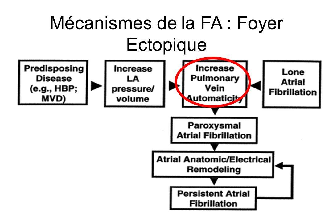 Mécanismes de la FA : Foyer Ectopique