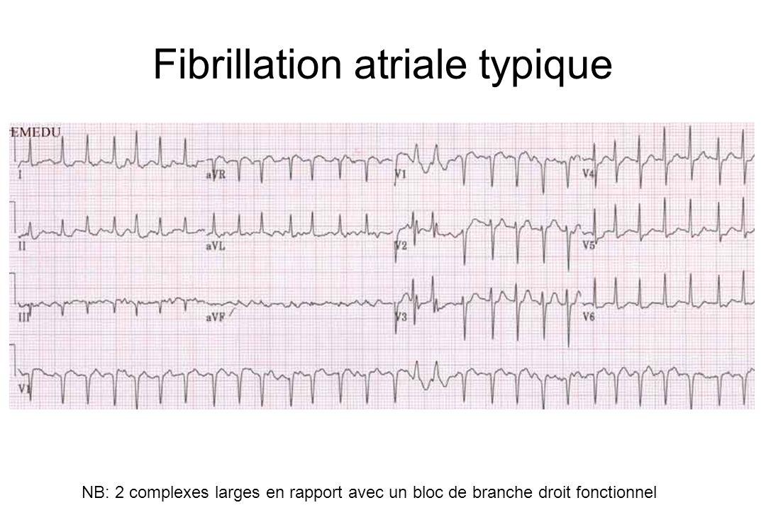 Fibrillation atriale typique NB: 2 complexes larges en rapport avec un bloc de branche droit fonctionnel