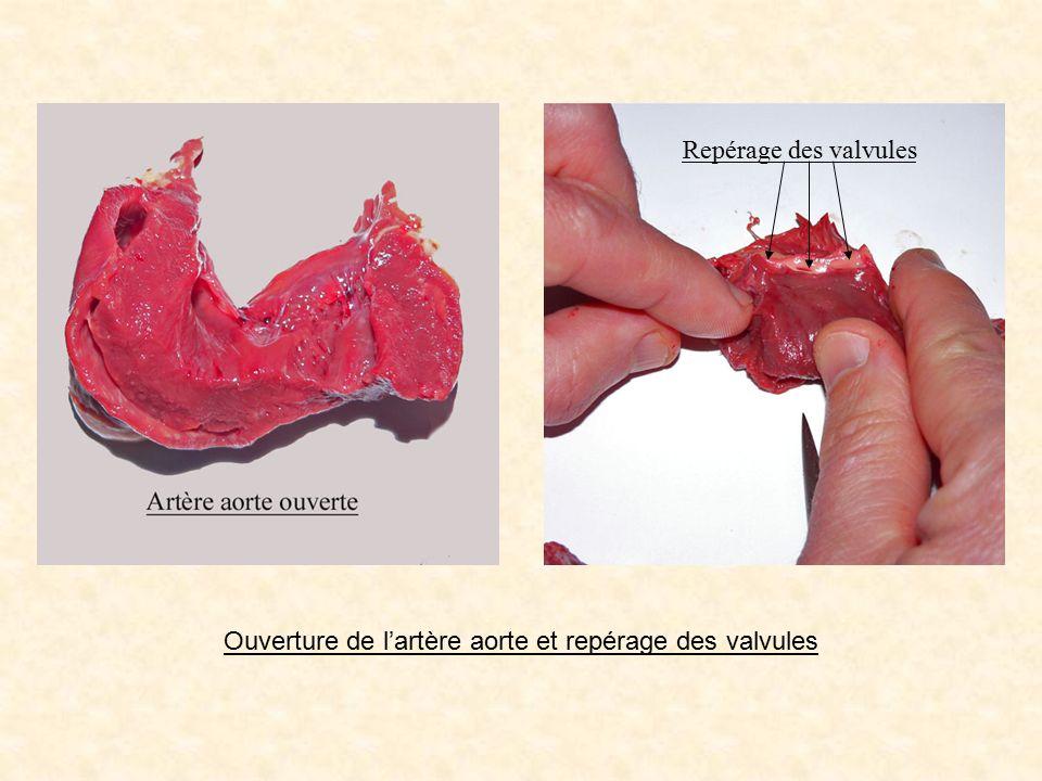 Repérage des valvules Ouverture de l'artère aorte et repérage des valvules