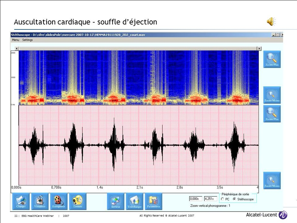 All Rights Reserved © Alcatel-Lucent | EBG HealthCare Webinar | 2007 Auscultation cardiaque – son normal