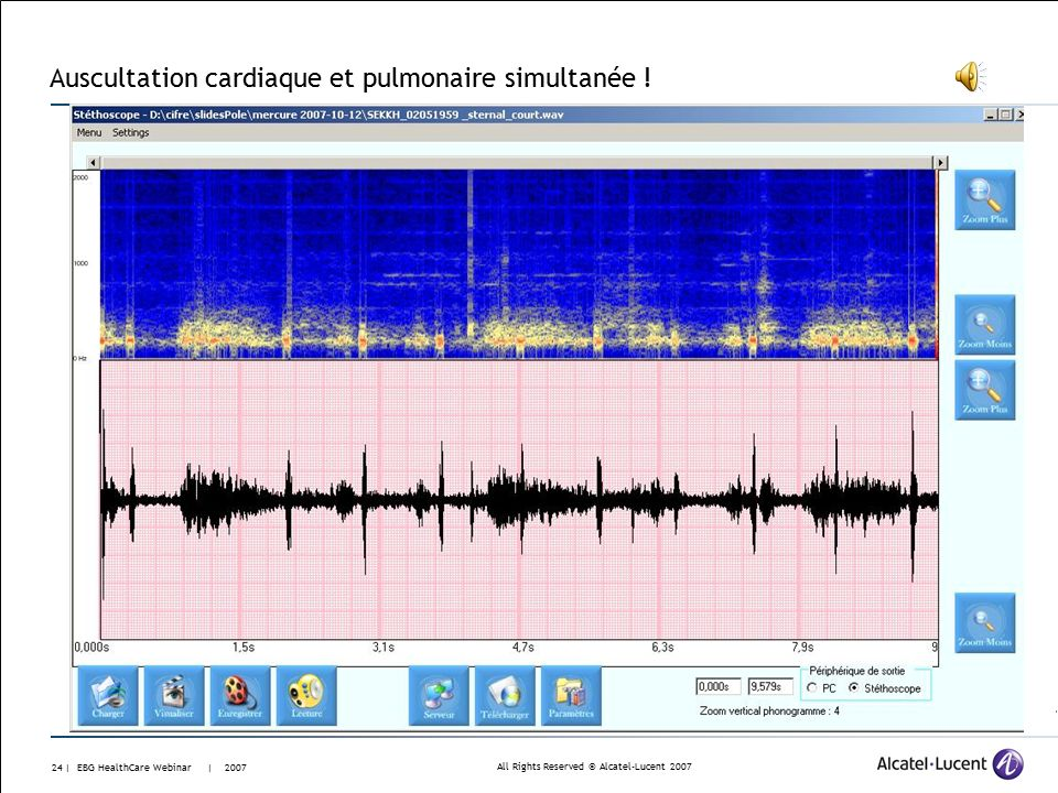 All Rights Reserved © Alcatel-Lucent | EBG HealthCare Webinar | 2007 Auscultation cardiaque – valve artificielle (Starr mitrale et aortique – arythmie)