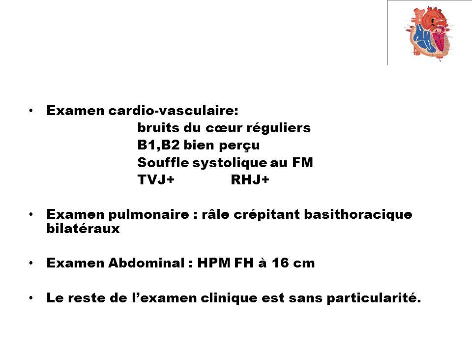 Examen cardio-vasculaire: bruits du cœur réguliers B1,B2 bien perçu Souffle systolique au FM TVJ+ RHJ+ Examen pulmonaire : râle crépitant basithoracique bilatéraux Examen Abdominal : HPM FH à 16 cm Le reste de l'examen clinique est sans particularité.