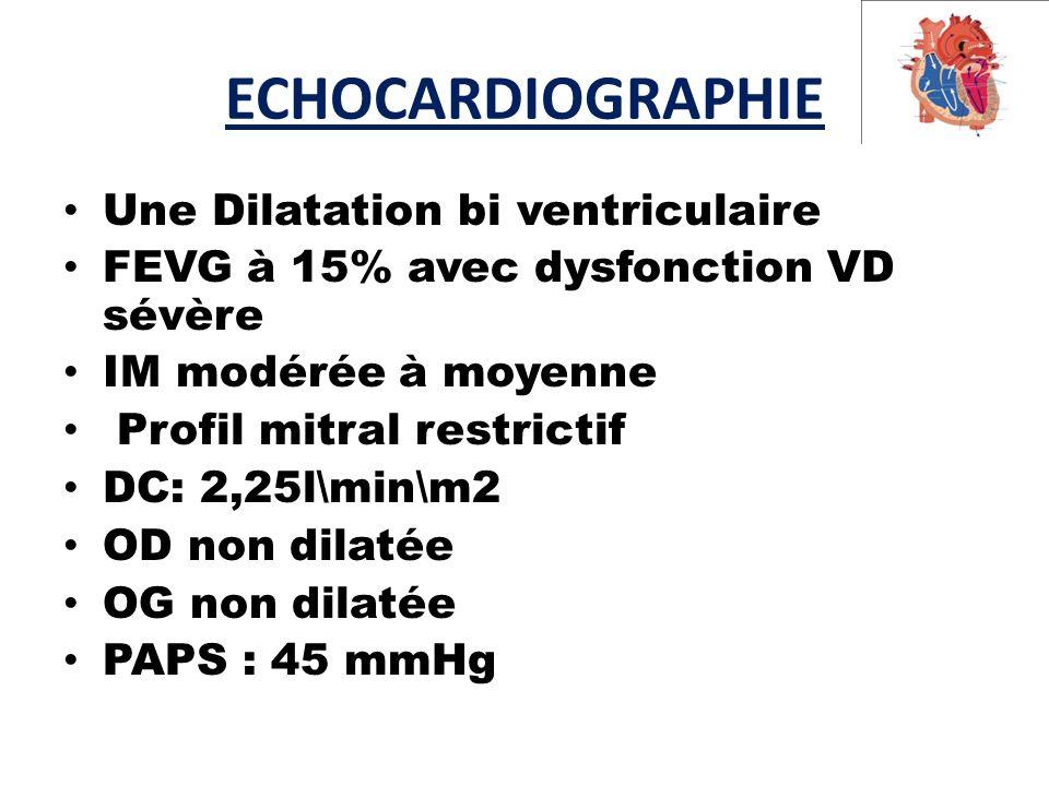 ECHOCARDIOGRAPHIE Une Dilatation bi ventriculaire FEVG à 15% avec dysfonction VD sévère IM modérée à moyenne Profil mitral restrictif DC: 2,25l\min\m2 OD non dilatée OG non dilatée PAPS : 45 mmHg