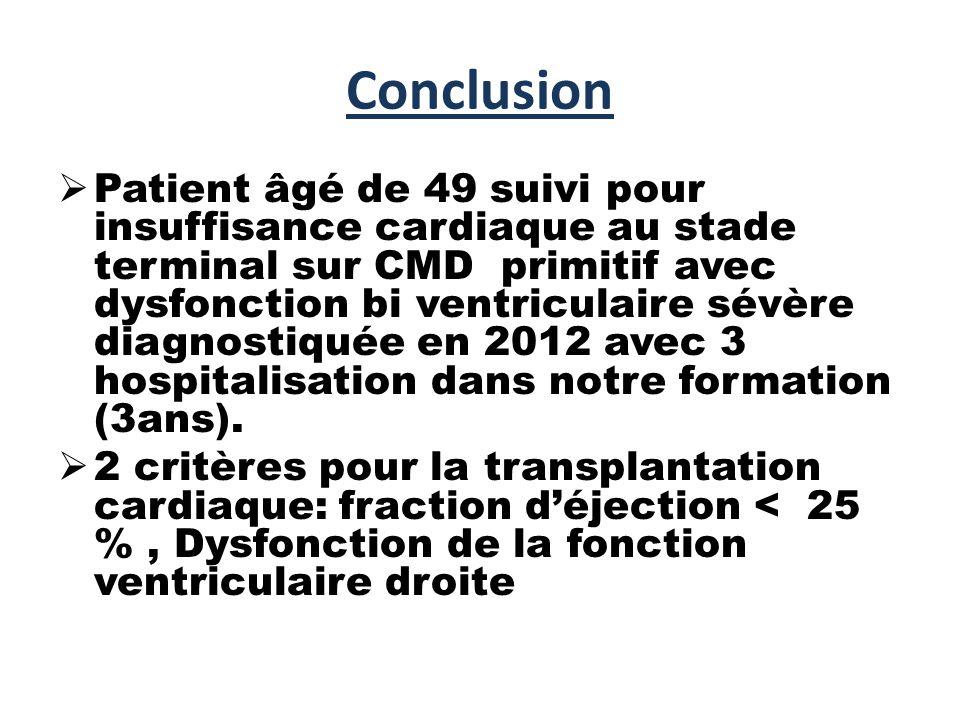 Conclusion  Patient âgé de 49 suivi pour insuffisance cardiaque au stade terminal sur CMD primitif avec dysfonction bi ventriculaire sévère diagnostiquée en 2012 avec 3 hospitalisation dans notre formation (3ans).