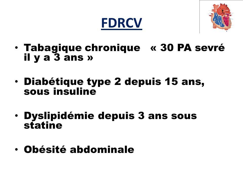FDRCV Tabagique chronique « 30 PA sevré il y a 3 ans » Diabétique type 2 depuis 15 ans, sous insuline Dyslipidémie depuis 3 ans sous statine Obésité abdominale